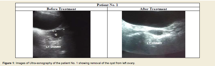 Avens Publishing Group - Removal of Large Sized Ovarian Cysts in